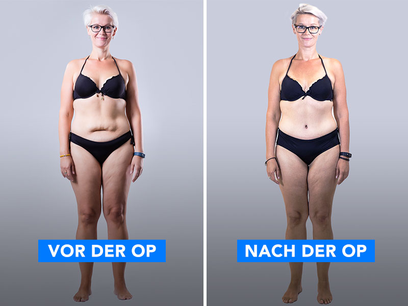 Ein Bild von einer Frau vor und nach der Hautstraffungs-Op.