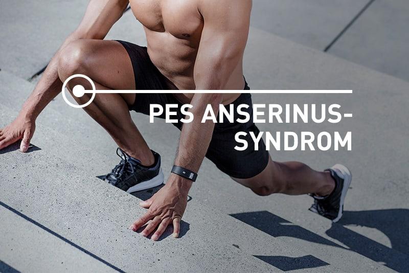 Pes Anserinus - Schmerz-Ortung