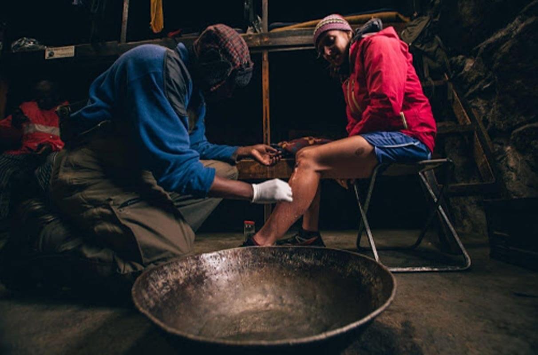 Hombre curando una herida en la pierna de Holly Page en una carrera de skyrunning